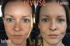 """Dude. Mandi Jo's results rock. """"A month ago I spent wayyyy too much money at Sephora on primer concealer and foundation. A close friend contacted me about RF and I jumped in feet first. I cannot believe the results I am seeing in just 3 short weeks!"""" #realpeople #realresults #reverseaging #rodanandfields #notjustaprettyface by rodan_and_fields_skincare"""