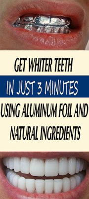 Get Whiter Teeth In Just 3 Minutes Using Aluminum Foil And Natural Ingredients - Cuidado Bucal Teeth Whitening Remedies, Natural Teeth Whitening, Whitening Kit, Home Remedies, Natural Remedies, Health Remedies, Get Whiter Teeth, Teeth Care, Health Tips