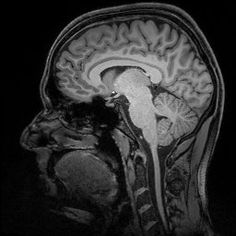 How Poverty Shapes the Brain - http://scienceblog.com/77532/how-poverty-shapes-the-brain/