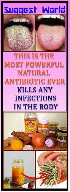 You will be amazed to know! This is The Most Powerful Natural Antibiotic Ever – Kills Any Infections in The Body Health Heal, Health Diet, Health And Wellness, Fat Cutter Drink, Natural Antibiotics, Natural Health Remedies, Health Facts, Alternative Medicine, Herbal Medicine
