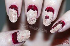 Creppy skin peeling/sliding-looking nail