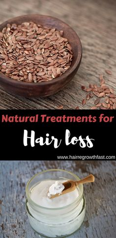 There are some simple natural treatments for hair loss that you can get started on right away. Learn what you can do today to start regrowing hair! Natural Treatments, Natural Remedies, Hair Loss Essential Oils, Regrow Hair, Hair Loss Treatment, Hair Growth, Simple, Food, Hair Growing