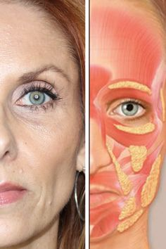 Ask the doctor facial aging survey results - Finding Confidence in Christ Botox Fillers, Dermal Fillers, Lip Fillers, Dental Aesthetics, Facial Aesthetics, Facial Anatomy, Human Body Anatomy, Facial Fat Loss, Allergan Botox