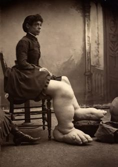 """Born with a beautiful face and giant feet, Fanny Mills came with a dowry of five thousand cash and a """"well stocked farm"""" in Ohio from her desperate father, to any single men willing to take her as bride."""