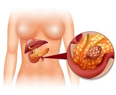 Buy Pancreas Cancer in Woman by BlueRingMedia on GraphicRiver. Pancreas cancer in woman illustration Signs Of Gluten Intolerance, Prevent Heart Attack, Colon Cleansers, Diabetes Management, Warning Signs, Cancer, Lose Weight, Health Fitness, Cartoon Clip