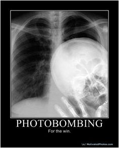 Photobombing...LMAO--seriously cant stop laughing (this would be the best thing ever to pull up on a patient's chart!)
