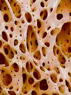 Bone tissue (imaged using a scanning electron microscope [SEM])-- texture inspiration Organic Forms, Natural Forms, Natural Structures, Organic Shapes, Natural Texture, Bone Marrow, Motifs Organiques, Scanning Electron Microscope, Fractals