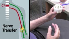 Nerve detour restores partial hand function in quadriplegic patient.  Not really new tech, but a new procedure.  Hope for paralyzed people.