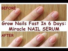 Make Nails Grow, Grow Long Nails, Grow Nails Faster, Nail Growth Faster, Nail Growth Tips, Short Nail Manicure, Short Nails, Manicures, Miracle Nails