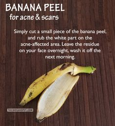 Overnight Acne scars remedy with banana peel Natural Hair Mask, Natural Exfoliant, Skin Tag Removal, Get Rid Of Blackheads, Homemade Face Masks, Acne Scars, Teeth Whitening, Face And Body, Beleza
