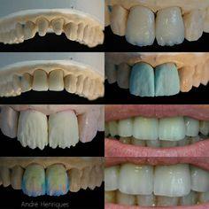 Layering progress on zirconia #odontologia #molar #dentalphotography #implants #dentalschool #odontolove #identistry #odontologia #dentallab #dentallife #dentalstudent #dentalrestoration #dentalwork #dental #dentallife #crownandbridge #dentalrestoration #dental #dentist #dentaltechnician #teeth #tooth #toothfairy #dentalcosmetic #molar #dentalart #artofdentistry #cosmeticdentistry #dentistry #dentalanatomy #dentalimplants #morphology