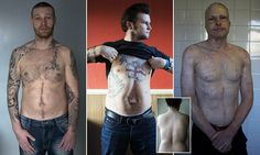 People who cheated death display their scars in haunting photos