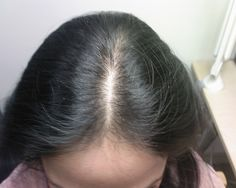 There are a number of medical reasons as to what causes hair loss in women. They are:  Anaemia Thyroid disease Gynaecological conditions Connective tissue diseases, such as Lupus Surgical procedures and general anaesthesia Rapid weight loss or crash diets that are not nutritionally balanced Severe emotional stress  #Harklinikken #hairlosscausesinwomen #hairrestoration #hairlosstreatment