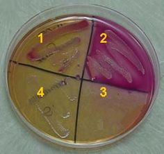 MacConkey Agar 1 - Enterobacter aerogenes 2 - Escherichia coli 3 - Staphylococcus epidermidis 4 - Salmonella typhimurium