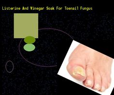 Listerine and vinegar soak for toenail fungus - Nail Fungus Remedy. You have nothing to lose! Visit Site Now