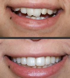 Cfast before and afters. Making smiles great at Bury Dental Centre. :)