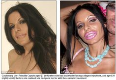 http://www.collagensupplementresearch.com/why-collagen-injections-should-be-your-last-resort/