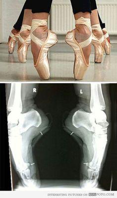 Anatomy of a ballerina's feet #xray