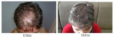 Hair Transplantation Before After photos. Hair Transplant at the best quality for a reasonable price! Before After Photo, Hair Transplant, Dreadlocks, Hair Styles, Beauty, March, Women, Photos, Photo Illustration