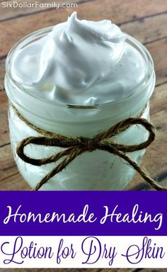 Skip the winter dry skin blues with this EASY to make homemade healing lotion for dry skin! It will repair even the toughest dry skin issues!