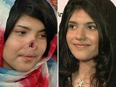 A photo of the mutilated face of Ayesha, an Afghan woman whose nose and ears were cut off by members of the Taliban,
