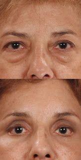 La mejor táctica Natural para deshacerse de bajo bolsas de los ojos - la víspera de especial