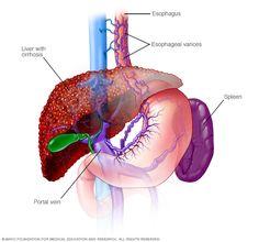 Autoimmune hepatitis - Mayo Clinic