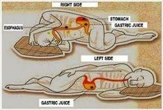 Heartburn Symptoms, Heartburn Relief, Sleep On Left Side, Doterra, Benefits Of Sleep, Health Benefits, Reflux Diet, Stomach Problems, Natural Antibiotics