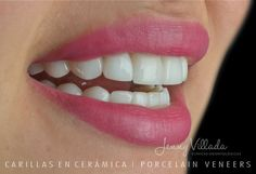 Transformamos vidas a través de sonrisas Dental, Teeth, Dentist Clinic, Tooth, Dental Health