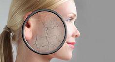 cara mengatasi kulit wajah kering dan bersisik secara alami dan cepat