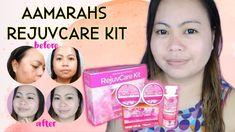 Aamarahs RejuvCare Kit Review - Ang Kakabog sa lahat ng Rejuvenating Set Product Review, Kit