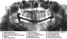 Panoramic Radiograph. Dental Anatomy and Tooth Morphology. Dentaltown http://www.dentaltown.com/MessageBoard/thread.aspx?s=2&f=154&t=234513&pg=1&r=3838043 #OralandMaxillofacialRadiology #PanoramicRadiograph #DentalAnatomy #ToothMorphology #Dentaltown #Dentist #Dentistry #Dental