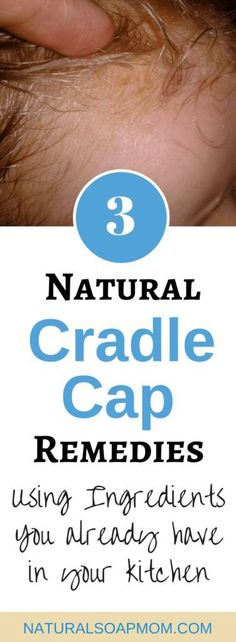 Natural Cradle Cap Remedies gently and effectively remove scales from sensitive skin. Learn 3 fast and effective cradle cap treatments for your baby. Natural Treatments, Natural Remedies, Baby Cradle Cap, Newton's Cradle, Cradle Cap Remedies, Cradle Cap Treatment, Starting Kindergarten, Newborn Bed