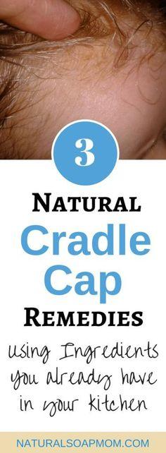 3 #Natural #Cradle #Cap #Remedies #That #Really #Work...And #Fast!, #cap #Cradle #fast #natural #remedies #WorkAnd