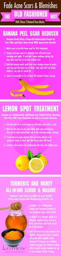 Fade acne scars and blemishes the old fashion way with these 3 natural face masks. * You can get more details by clicking on the image. #blackhead