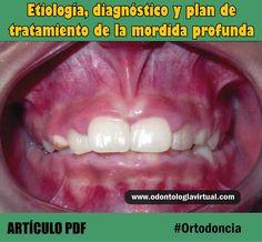 ORTODONCIA: Etiología, diagnóstico y plan de tratamiento de la mordida profunda | Ovi Dental