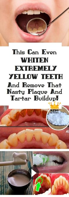 If you want to avoid going to the dentist, the best option you have for removing plaque buildup is the DIY treatment we recommend here. What you need: Baking soda, Toothbrush, Hydrogen peroxide, Salt, Water,[...]