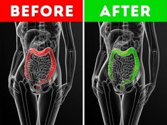 Δείτε 9 σοβαρούς λόγους για να πιείτε το ελαιόλαδο με άδειο στομάχι κάθε πρωί. Δεν είχαμε ιδέα! - OlaSimera