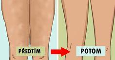 Přestože celulitida není nebezpečná, vyvolává rozpaky u celé řady lidí. ');}); // ]]> Tento nepříliš nehezký povrch kůže se vytváří, když tuk tlačí proti pokožce a vytváří důlek. Někteří lidé si spojují celulitidu s nadváhou, ale ne vždy je tomu tak. Hubnutí někdy pomůže odstranit ce