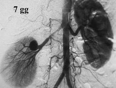 Renal artery aneurysms (RAA)'s are considered the second most common visceral aneurysm (15-22 %), most common being splenic artery aneurysm (60%). It is more common in females. Most of the lesions are saccular and tend to occur at the bifurcation of main renal artery.  Read more: http://radiopaedia.org/articles/renal-artery-aneurysm