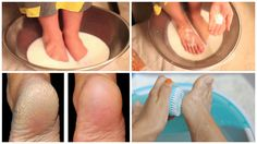 Their hygiene and condition are very important and indicate your personal hygiene. The excuse of many people for not treating the feet is that the pedicure is a time consuming and expensive treatment. Cracked Feet, Cracked Skin, Diy Pedicure, Homemade Pedicure, Pedicure Soak, Home Health Remedies, Tired Feet, Foot Soak, Skin Tag