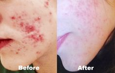 Look at these amazing results of one of our customers on the AcnEase severe acne treatment after 1 month.  Learn what type of acne you have, and which AcnEase treatment would be right for you!  #acnescars #skincare #acne