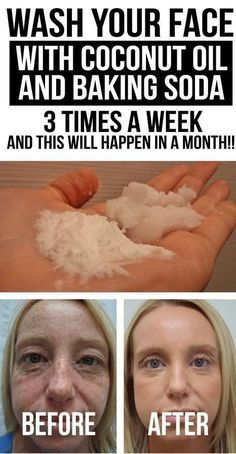 WASH YOUR FACE WITH COCONUT OIL AND BAKING SODA 3 TIMES A WEEK, AND THIS WILL HAPPEN IN A MONTH