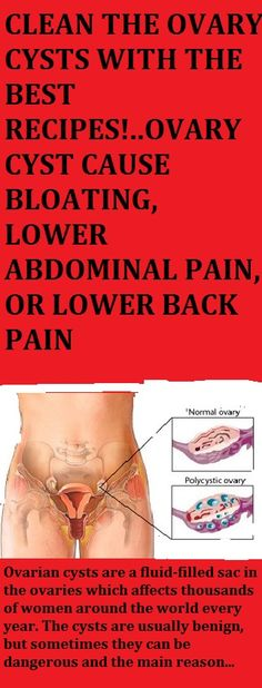 Low back pain - Mayo Clinic