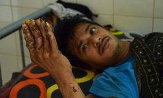 #After 24 surgeries, Bangladesh 'tree man' relapses - Daily Mail: Daily Mail After 24 surgeries, Bangladesh 'tree man' relapses Daily Mail…