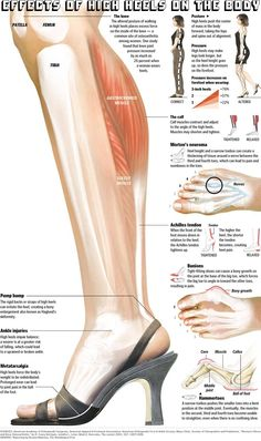 Description of what happens where you are wearing heels. #footpain