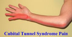 Carpal vs Cubital Syndrome with Stretches Carpal Tunnel Exercises, Cubital Tunnel Syndrome, Carpal Tunnel Relief, Ulnar Nerve, Forearm Workout, Psoas Muscle, Healthy Mind And Body, Chiropractic Care, Body Systems