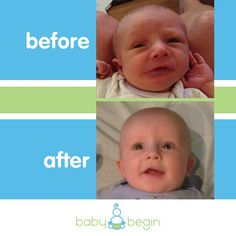 Results fromearly treatment of Torticollis.