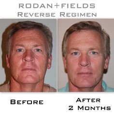 Working an outdoors job led to a face full of sun damage. He began using the Rodan+Fields Reverse regimen Accelerator Pack and changed his skin.