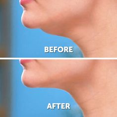 11 Effective Facial Rejuvenation Exercises Best Picture For DIY Skin Care coc Gym Workout For Beginners, Gym Workout Tips, Fitness Workouts, Fitness Goals, Health Fitness, Beauty Tips For Glowing Skin, Health And Beauty Tips, Health Tips, Beauty Skin